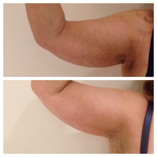 before after cryoskin 9