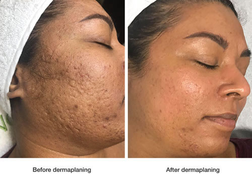 dermaplaning before after