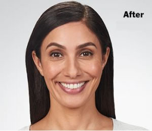 afterbotox